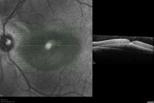 OCT inicial: se evidencia agujero macular.