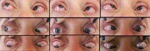Movimientos oculares. Endotropia 50DP e hipertropia 15DP en posición al frente.