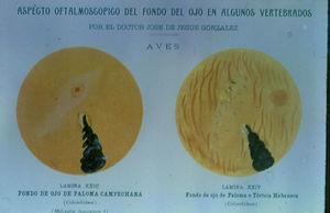 El fondo de ojo de la paloma campechana y de la paloma o tórtola habanera.