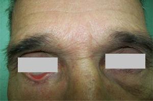 Ectropión cicatricial en el párpado inferior derecho.