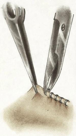 Técnica de Castroviejo: Se «pellizcaba la esclera» con clips de titanio, para producir ese mismo efecto indentador.