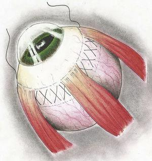 Técnica de Weve: Se colocaban suturas en la esclera, para posteriormente anudarla e imbricar la esclera hacia adentro.