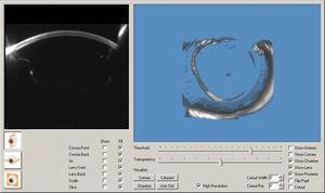 Vista anteroposterior de los tomogramas de Scheimpflug de las estructuras a evaluar.