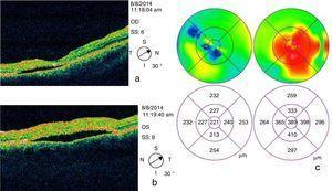 OCT inicial. OCT de dominio temporal que muestra hiporreflectividad subfoveal, con foveosquisis y desprendimiento del EPR en ambos ojos secundarios a la presencia de líquido subretiniano (a y b), principalmente en ojo izquierdo (b), con edema macular en Ol como se muestra en el mapa de grosor macular.