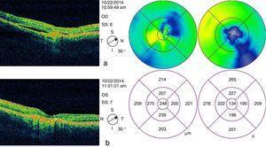 OCT final. OCT de dominio temporal un mes después del tratamiento en OI. (a) Se observa OD con leve disminución espontánea de líquido subretiniano y aumento de cambios atróficos en EPR, (b) OI con remisión de líquido subretiniano y (c) del edema macular.