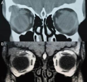 Imágenes de la TC (2A) y RM orbitaria (2B) al diagnóstico.