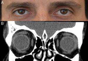 Imágenes actuales de la exploración (5A) y la TC orbitaria (5B) del paciente.
