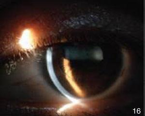 Segmento anterior de ojo izquierdo postratamiento.