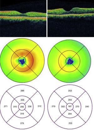 Tomografía de coherencia óptica ambos ojos; en el mapa macular, en el círculo concéntrico de los 3mm se aprecia un aumento del grosor retiniano en ojo derecho, ojo izquierdo de características normales.