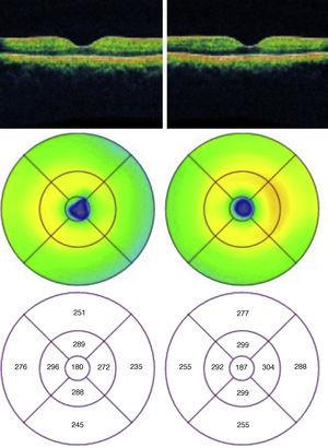 Tomografía de coherencia óptica un mes después de ambos ojos, en donde se aprecia una disminución en el volumen macular en el círculo de los 3mm en el ojo derecho.