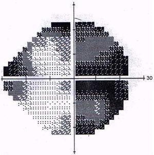 Primer campo visual ojo derecho.