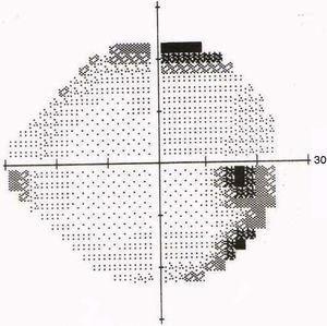 Segundo campo visual ojo derecho.