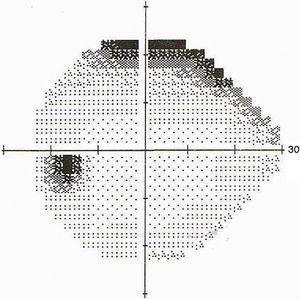 Segundo campo visual ojo izquierdo.