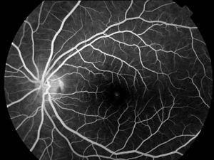 Angiografía fluoresceínica OI. Bloqueo de la fluorescencia coroidea. Resalta el árbol vascular.