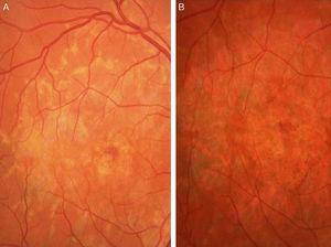 A. Retinografía OD. Flecos perimaculares con atrofia del epitelio pigmentario retiniano incipiente. B. Retinografía OD 5 años después. Atrofia geográfica macular.