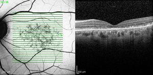 Izquierda: autofluorescencia OI. Derecha: tomografía óptica de coherencia OI. Engrosamiento hiperreflectivo a nivel de la capa de fotorreceptores.