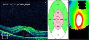 Valores basales pretratamiento de: a) AVMC en escala Snellen y logMar (en blanco) y LSF en micras (en rojo), b) GMC en micras y c) Mapa calórico.