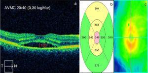 Valores mensuales postratamiento de: a) AVMC en escala Snellen y logMar (en blanco) y LSF en micras (en rojo), b) GMC en micras y c) Mapa calórico.
