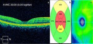 Valores trimensuales postratamiento de: a) AVMC en escala de Snellen y logMar (en blanco) y ausencia de LSF, b) GMC en micras y c) Mapa calórico.
