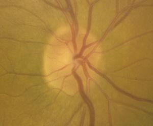 Nervio óptico del ojo derecho que muestra una relación excavación/papila de 0.1.