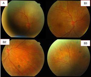 A. A los 40 días el proceso coroideo evoluciona positivamente; apenas hay vitreítis ni focos coroideos activos. Se aplicó láser en retina del ojo derecho por desgarros producidos por el proceso inflamatorio. B1, B2 y B3. Fotos a los 80 días: proceso en estado cicatricial.