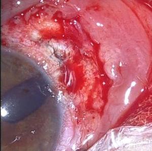Fístula intraquirúrgica.