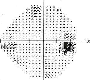 Humphrey visual field (24-2) test result, showing a corresponding scotoma.