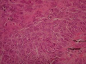 Imagen histológica de células basaloides perivasculares asociadas a nidos de células con diferenciación escamosa y actividad mitótica. Flechas largas: células empalizadas basaloides. Flechas cortas: células con diferenciación escamosa.
