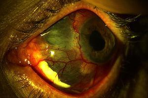 Escleromalacia perforante, donde se observa pérdida escleral con protrusión uveal bajo la conjuntiva estirada.