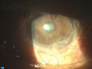 Imagen biomicroscópica de OI con lámpara de hendidura con cámara CSO Digital vision.