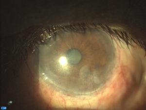 Imagen biomicroscópica de OI al año con lámpara de hendidura con cámara CSO Digital vision.