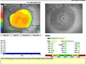 Topografía de OD con topógrafo Magellan de Nidek®.