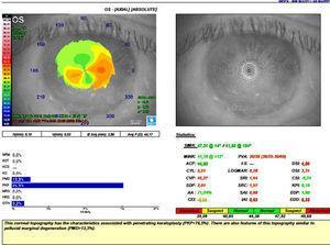 Topografía de OI con topógrafo Magellan de Nidek®.