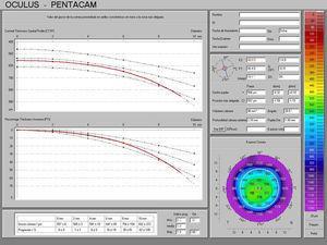 Mapa paquimétrico de OD con el Pentacam® de Oculus.