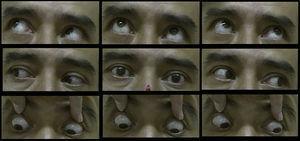 Movimientos oculares, exploración final.