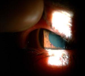 Angioma de iris visto en urgencia al dilatar para valorar miodesopsias.