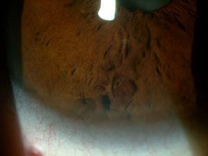 Base del iris donde se aprecia cuerpo del angioma.