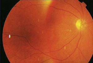 Se aprecia movilización de émbolos blanquecinos en zona de la arteria temporal inferior paramacular.