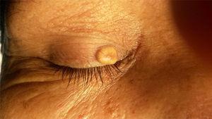 Quiste epidérmico de inclusión: poro central y un vaso ingurgitado.