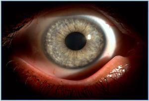 Alteraciones de la coloración de iris con hipocromía y atrofia periférica.