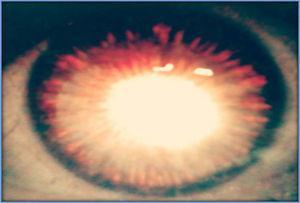 Transiluminación periférica del iris por pérdida del pigmento.