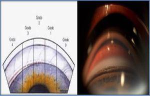 Comparación de la gradación del ángulo iridocorneal según Schaffer, con el ángulo iridocorneal de nuestra paciente, donde se aprecian todas las estructuras vistas en su grado iv.