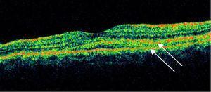 Tomografía de coherencia óptica, mácula ojo izquierdo.