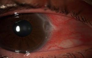 Biomicroscopía anterior de la córnea, ojo derecho. Lesión corneal periférica, con bordes grises, inyección cilioconjuntival y edema conjuntival.