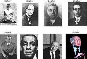 Secuencia cronológica de fotografías de Jorge Luis Borges que muestran las manifestaciones físicas de la oftalmopatía conforme avanza su edad. Destaca la acentuación del estrabismo convergente y de la ptosis palpebral derecha durante la vejez.