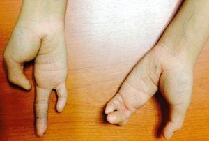 Vista anterior de ambas manos con ectrodactilia.
