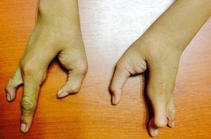 Vista posterior de ambas manos con ectrodactilia.