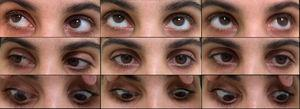 Left conjugate gaze palsy: minimal abduction and mild delay on adduction.