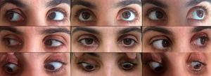After corticosteroid treatment, gaze palsy resolved within three weeks.
