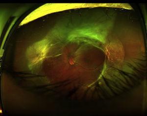 Fotografía de campo ultra-amplio en un ojo izquierdo obtenida con un Optos Daytona (Optos, Dunfermline, Reino Unido) que muestra un desprendimiento de retina traccional en el ojo izquierdo, secundario a retinopatía diabética proliferativa.